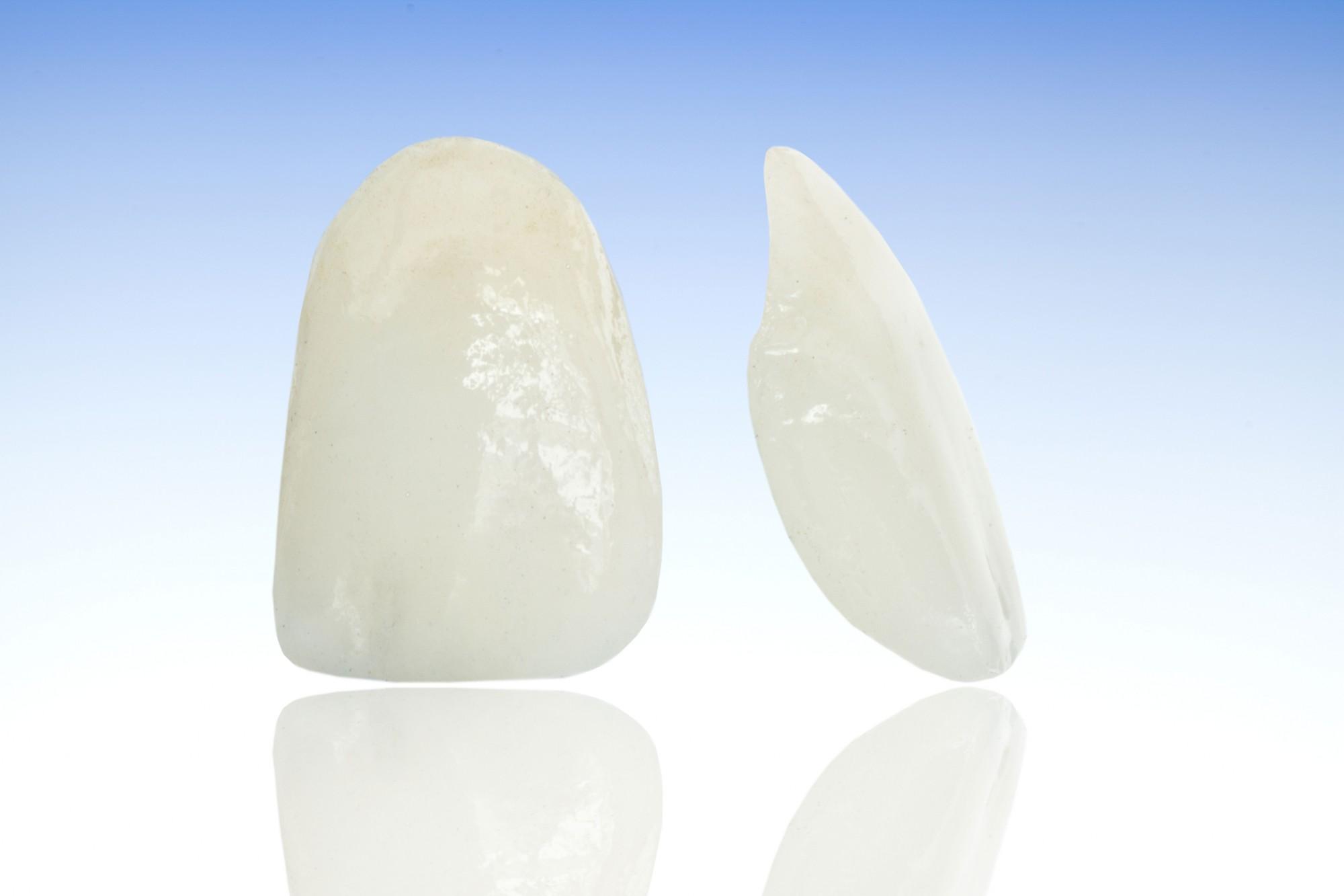 ציפויי שיניים לאסתטיקה מושלמת