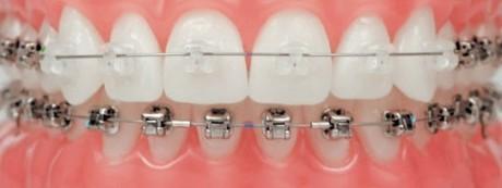 יישור שיניים מהיר System Damon